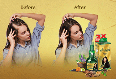 Ayuvedic Hair Oil for Hair Fall Problems