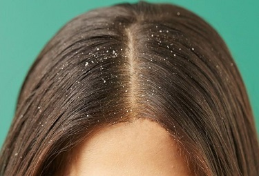 Hair with Dandruff