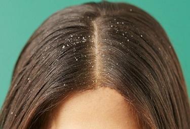 Hair with Dandruff